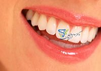 هزینههای دندانپزشکی زیبایی